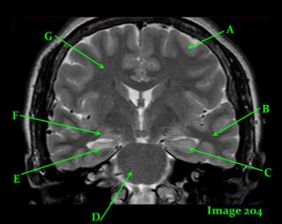 HEAD AND NECK MRI