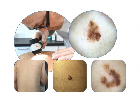 Dermatoscopy - Chaos & Clues