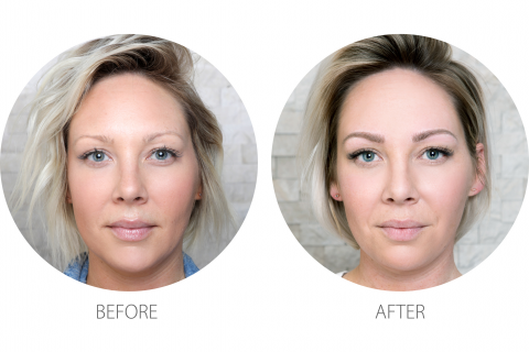 Overplucked Brows - Microblading - ENG