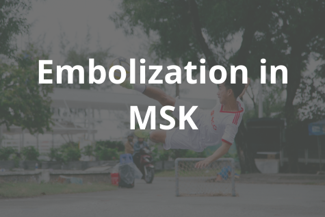 Embolization in MSK