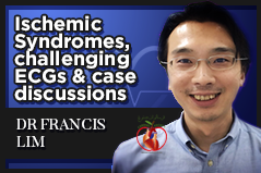 Ischemic Syndromes Challenging ECGs and Case Discussions (ECG 5)