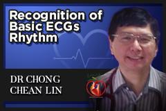 Recognition of Basic ECGs Rhythm (ECG 7)