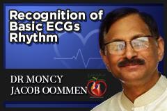 Recognition of Basic ECGs Rhythm Part 2 (ECG 9)