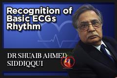 Recognition of Basic ECGs Rhythm Part 1 (ECG 10)