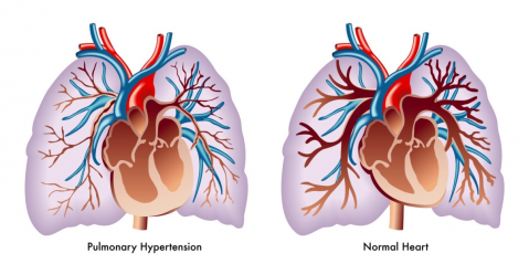 pHTN: What is pulmonary hypertension? (PULM005)