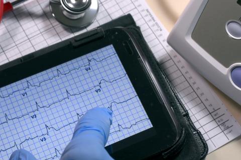 Basic EKG (C001)