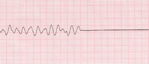 Life Threatening Arrhythmias