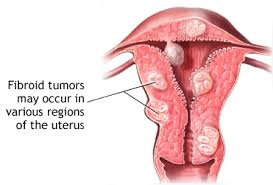 Fibroids: Your Womb Grows What's Hidden